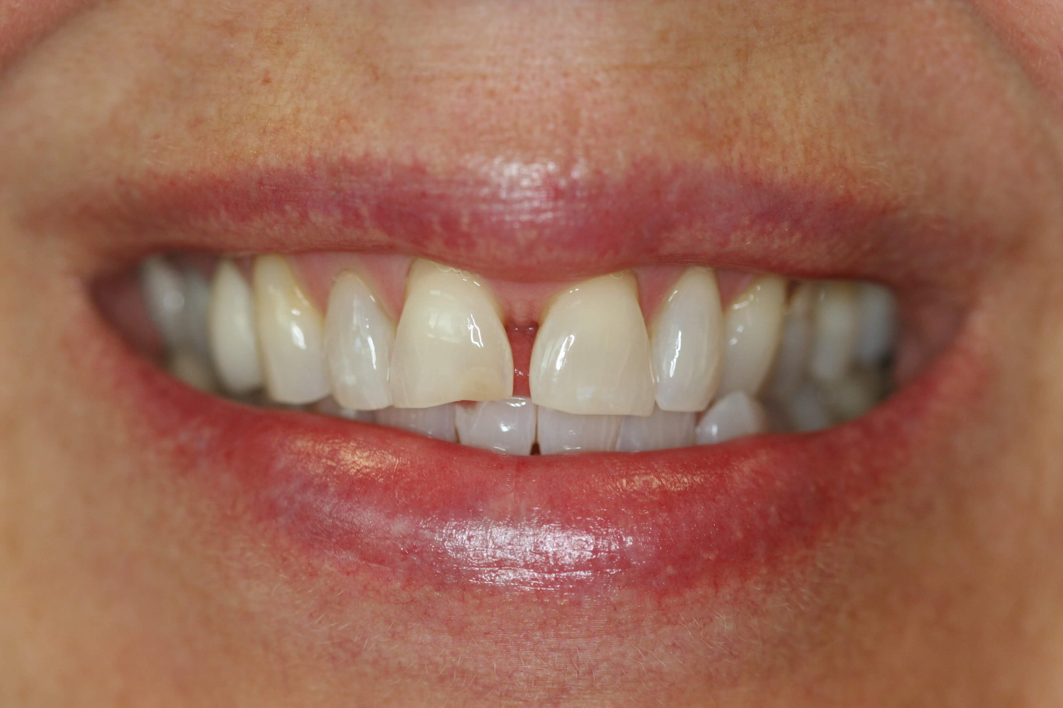 Crowns and veneers Before