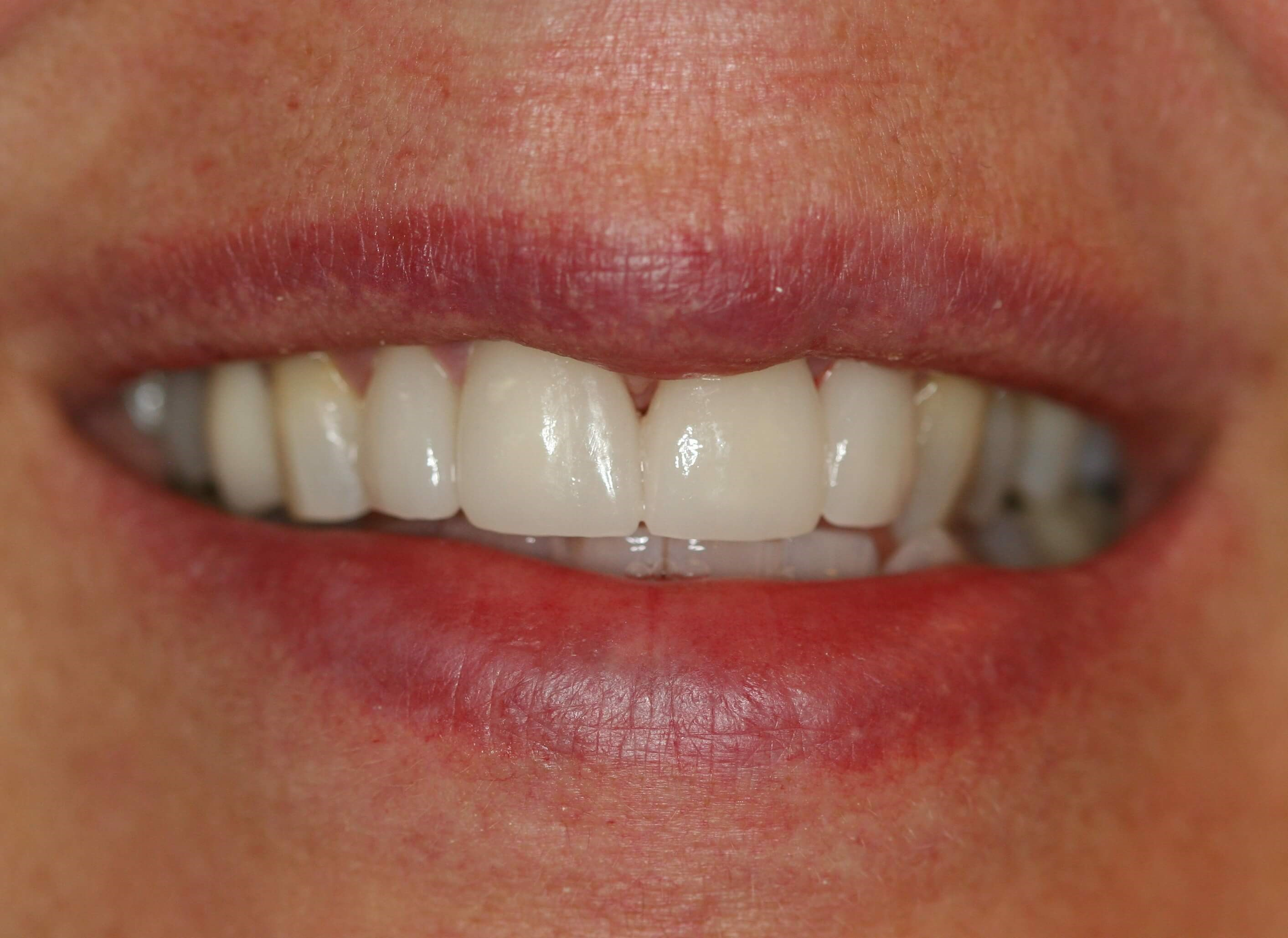 Crowns and veneers After