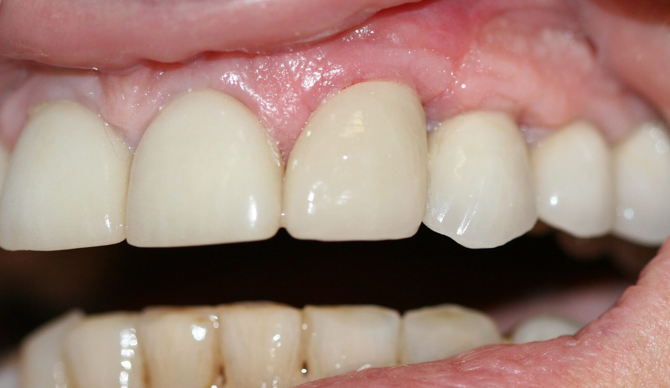 Implant and crown After