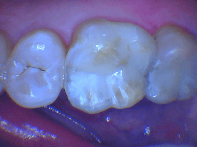 Cracked silver fillings After
