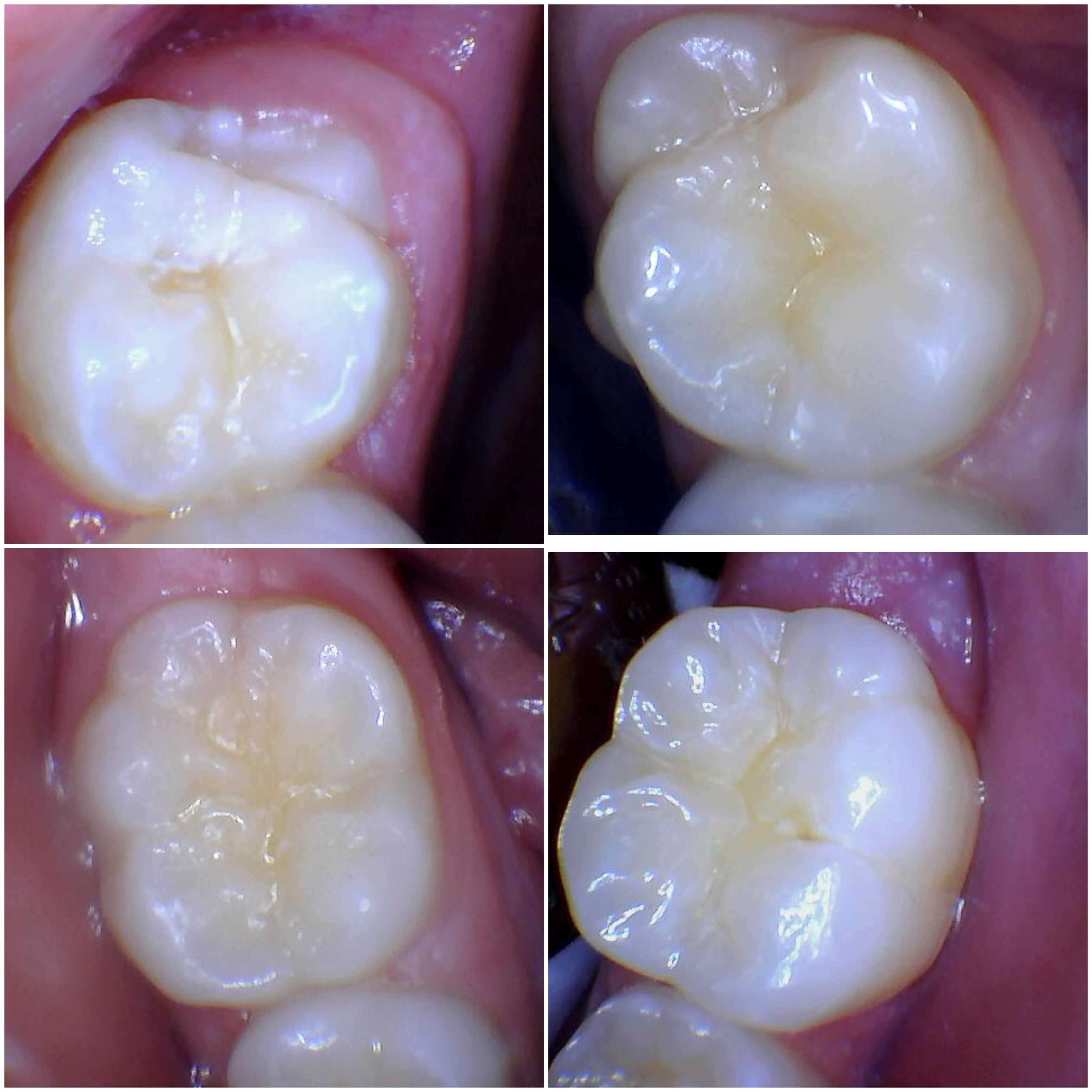 Sealants for 6 and 12yr molars Before