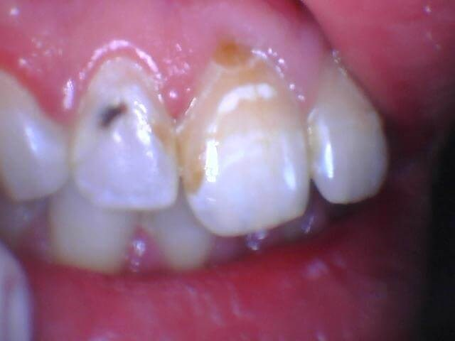 Treatment with resin fillings Before