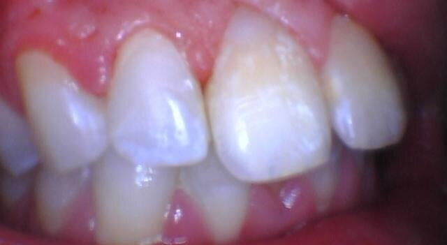 Treatment with resin fillings After