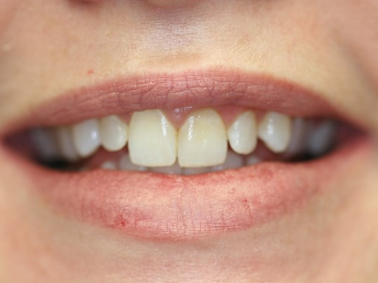 Small lateral incisors Before