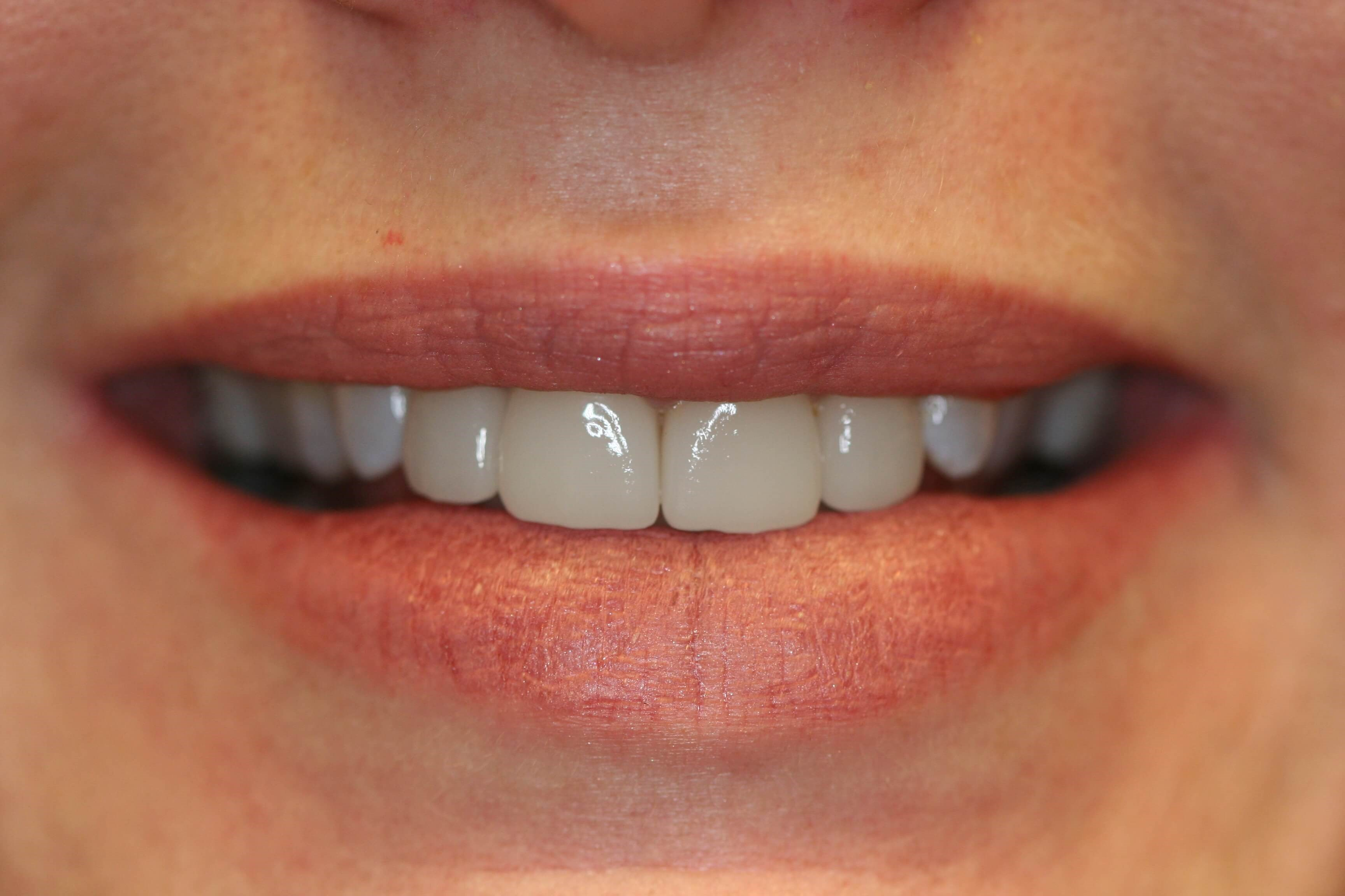 Small lateral incisors After