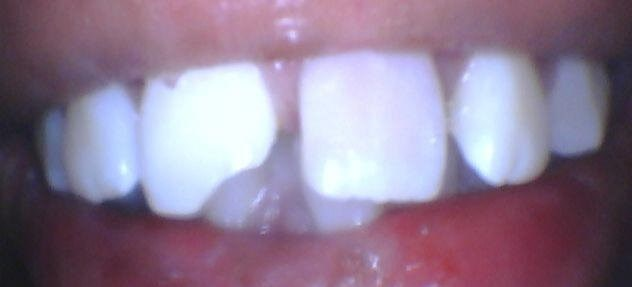 broken front tooth Before