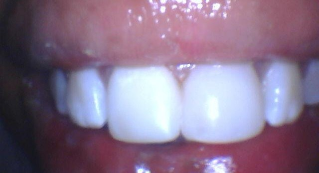 broken front tooth After