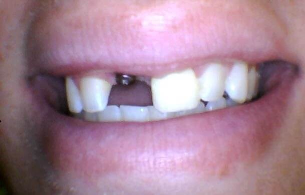 Missing tooth vs implant crown Before