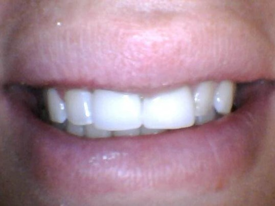 Missing tooth vs implant crown After