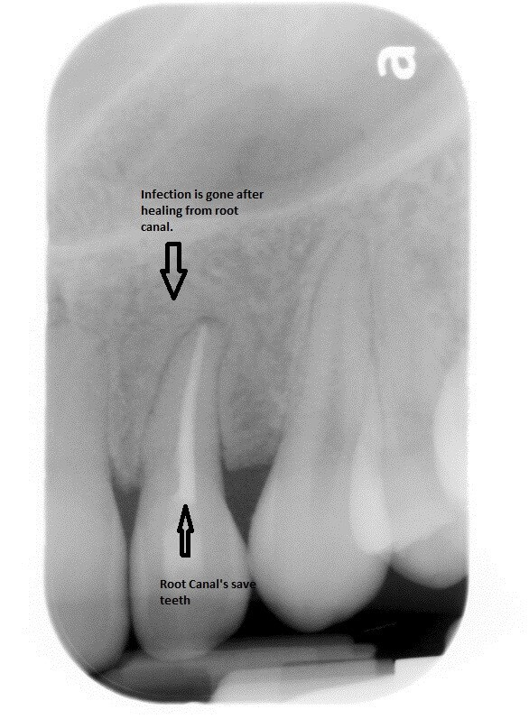 Root Canals save teeth After
