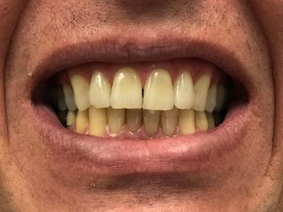 1 hour whitening Before