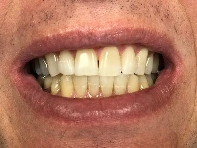 1 hour whitening After