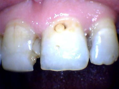 Broken and decayed front teeth Before