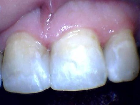 Broken and decayed front teeth After