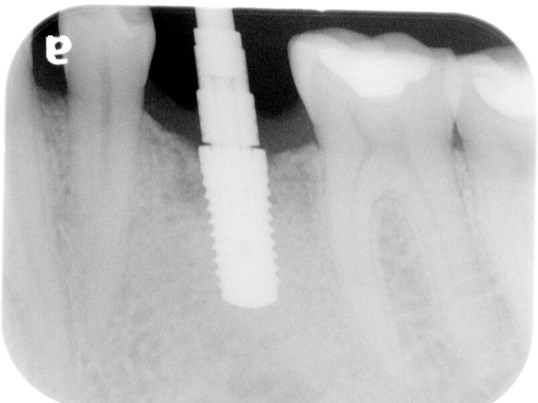 Implant Placement Implant Verification