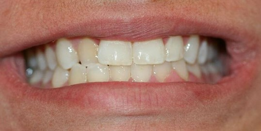 Invisalign Express Before