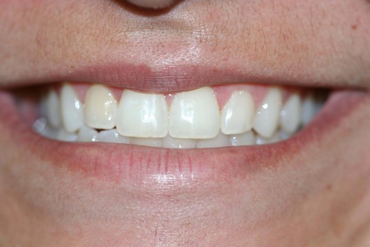 Invisalign Express After
