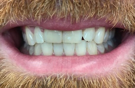 stained and chipped teeth After