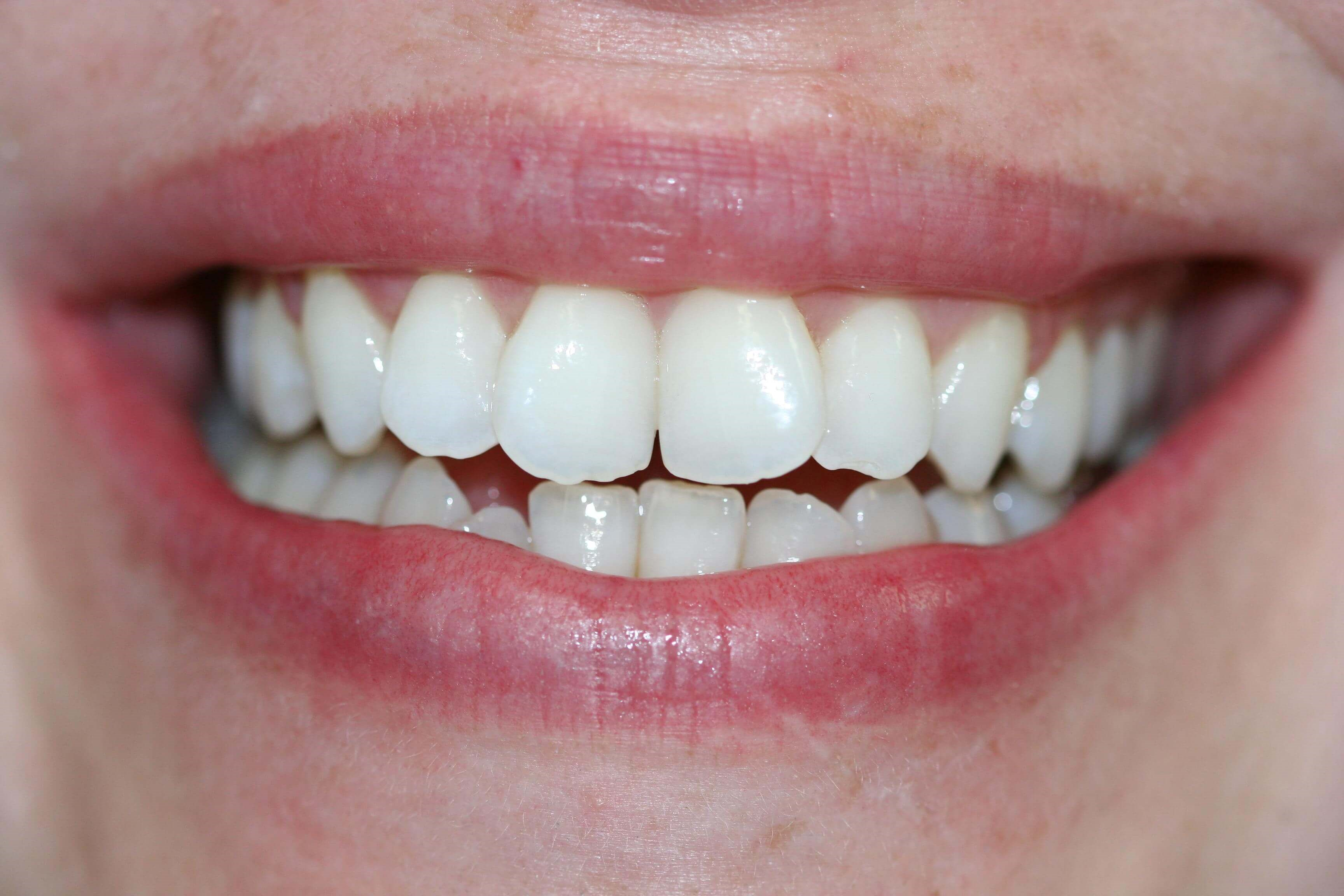 Invisalign (clear braces) Before