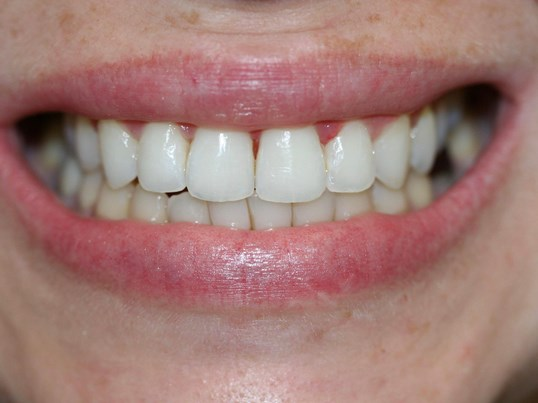Invisalign (clear braces) After