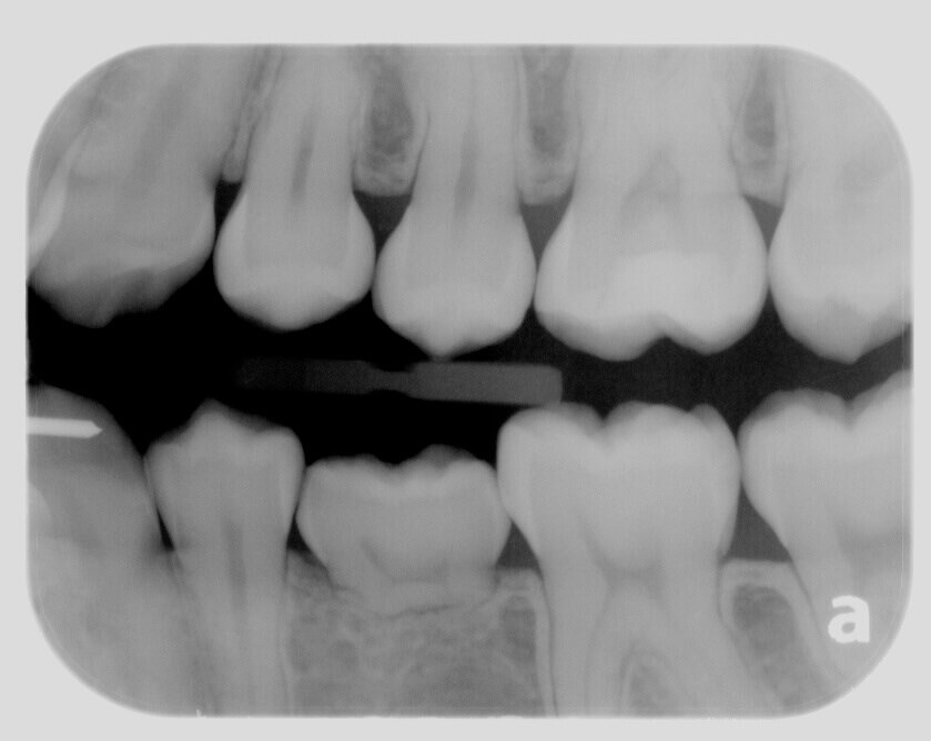 Before Baby Tooth Before view