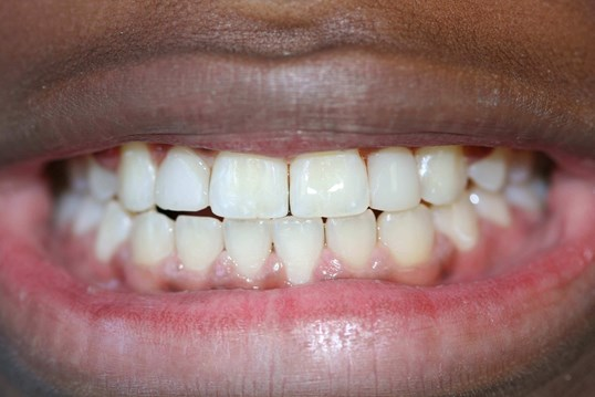 Veneers to restore a smile After