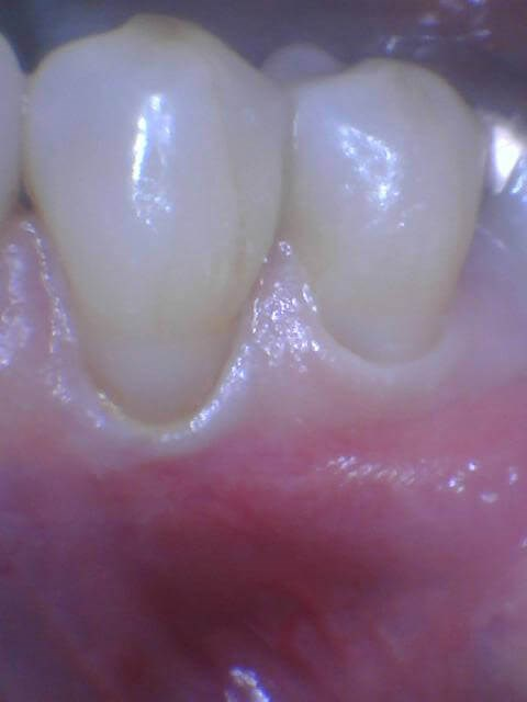 Wear from Bruxism After