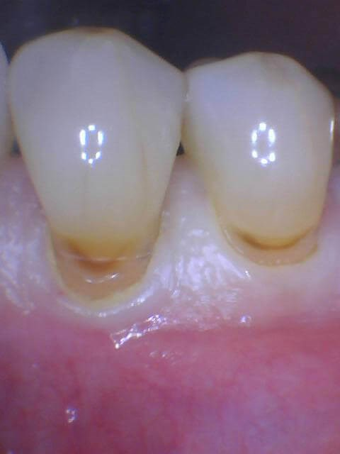 Wear from Bruxism Before
