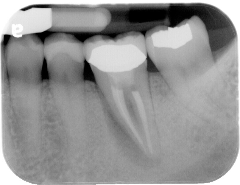 Infected tooth removal Before extraction