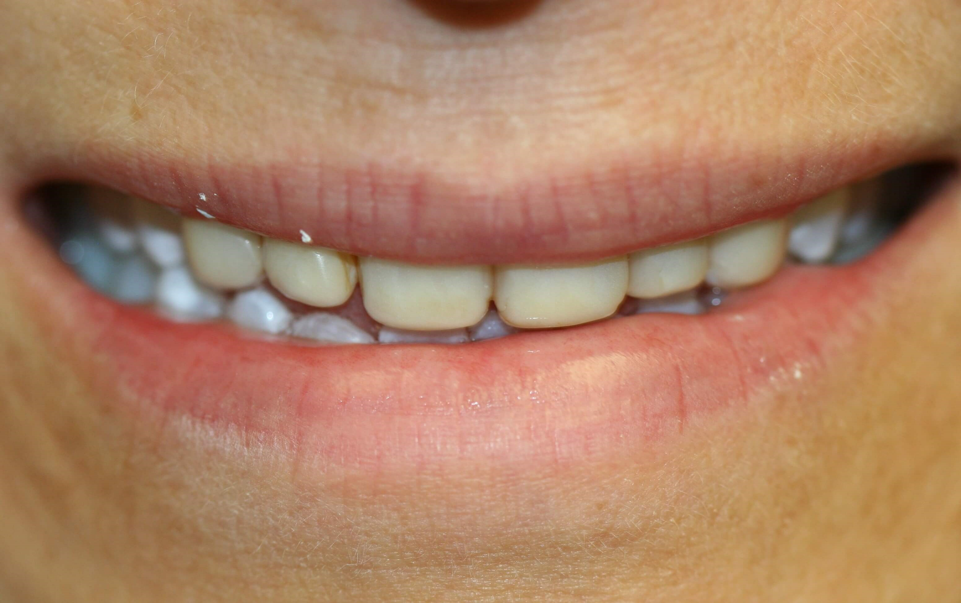 New Porcelain Veneers Before