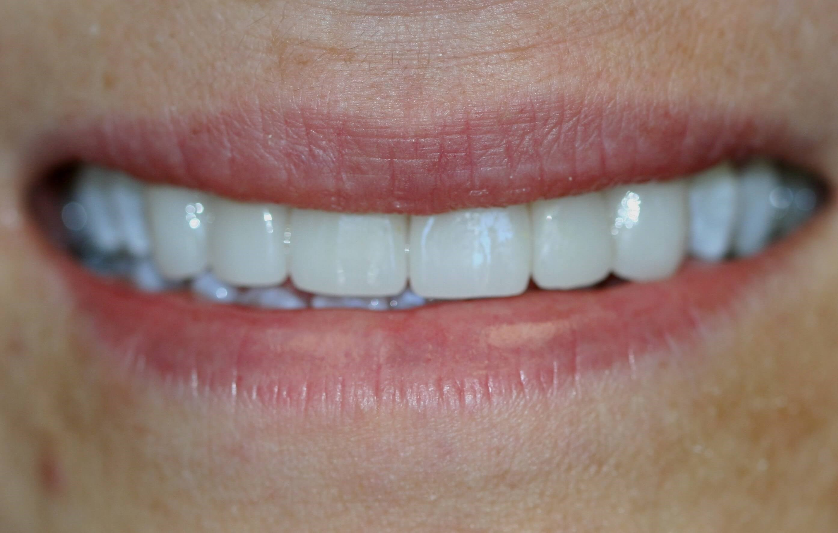 New Porcelain Veneers After