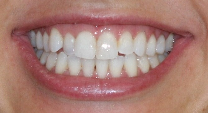 Invisalign Correction Before