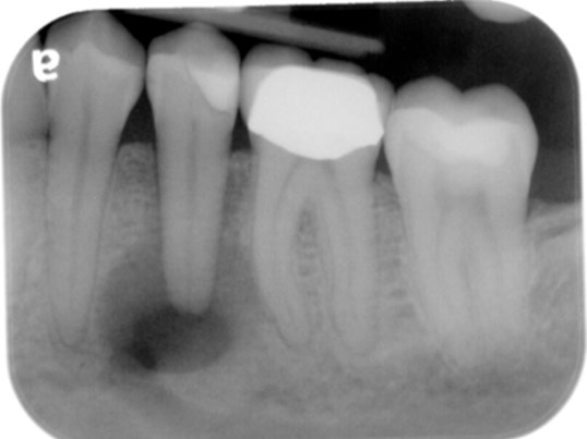 Root Canal Before