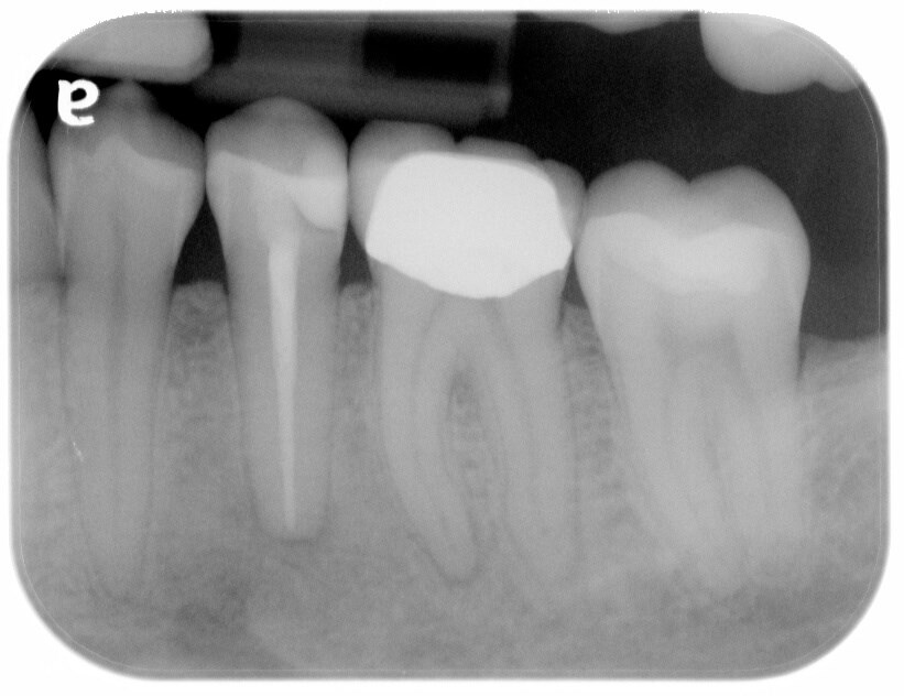 Infected tooth requiring a root canal